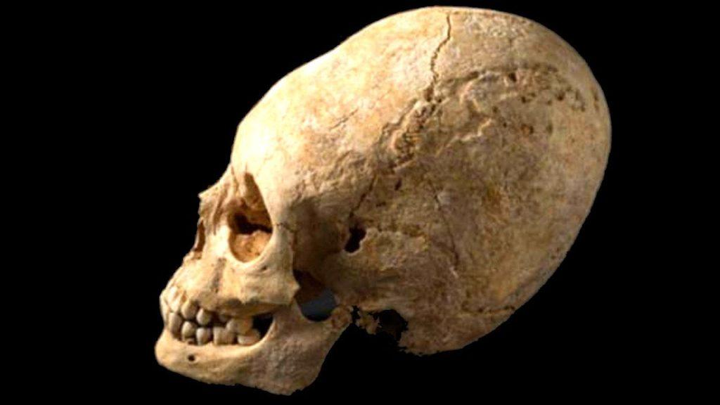 Imagem de um crânio alongado
